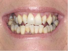 Before Implants