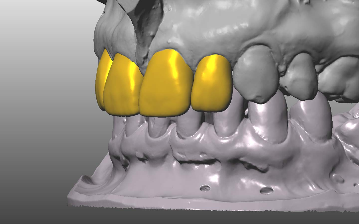 Treatment photograph showing what new teeth will look like