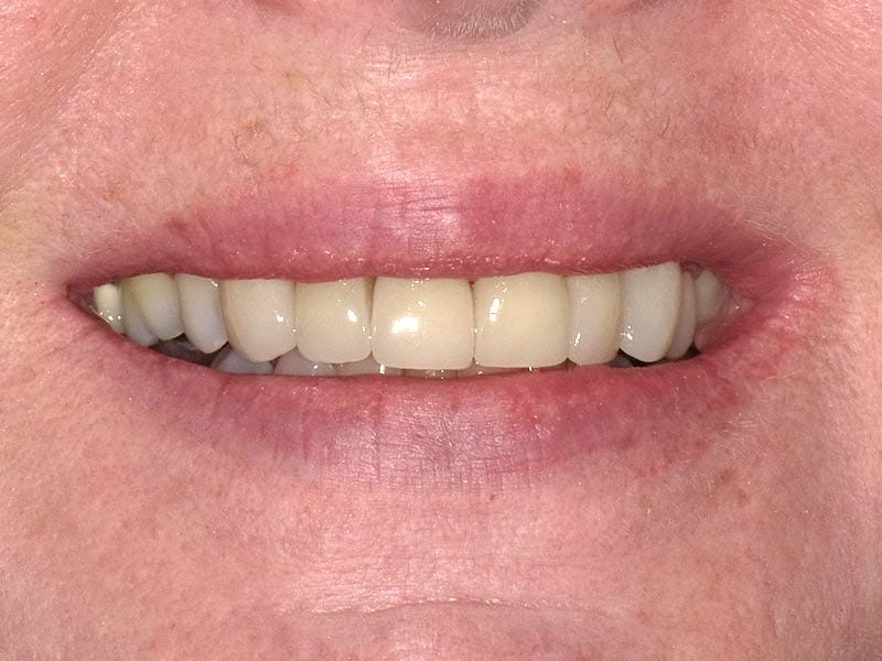 smile makeover after treatment photograph