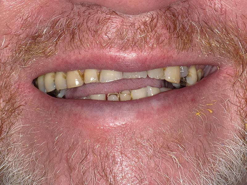 smile makeover before case photo
